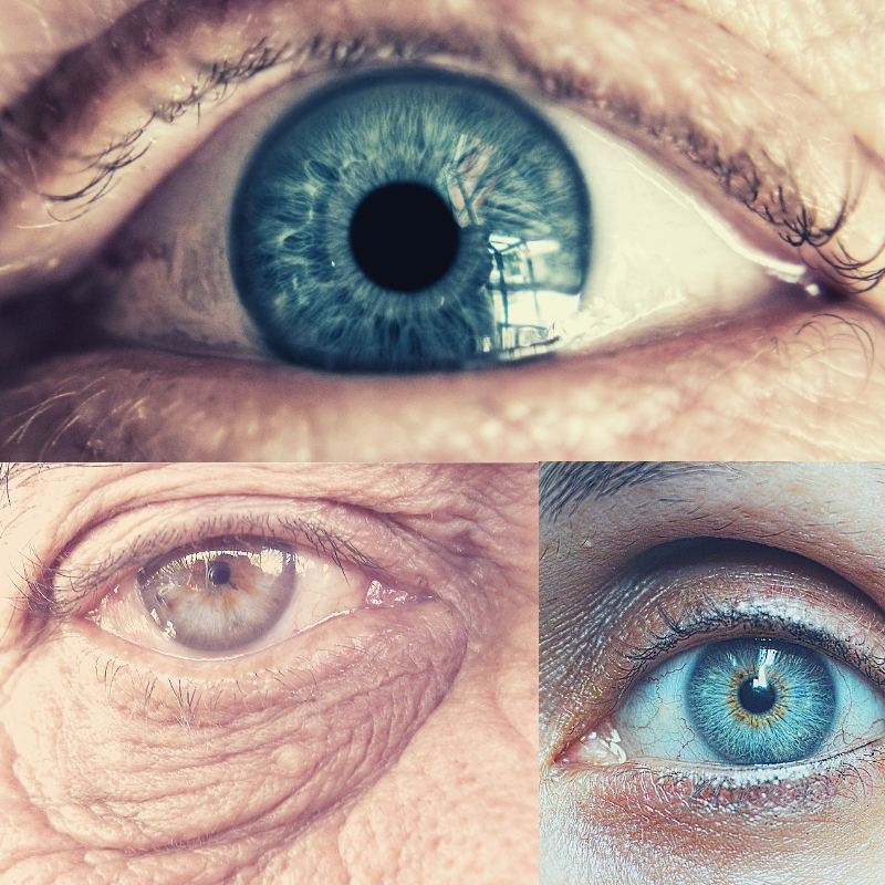 What you should know about cataracts